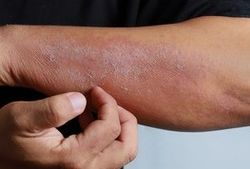 Biologics for Inflammatory Skin Disease Accepted During COVID-19 Pandemic