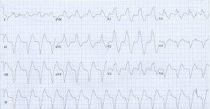 a hipertónia megjelenik-e az EKG-n