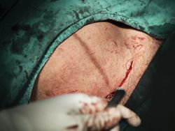 Post-Operative Strategies for Reducing Surgical Site Infection After Cesarean Section