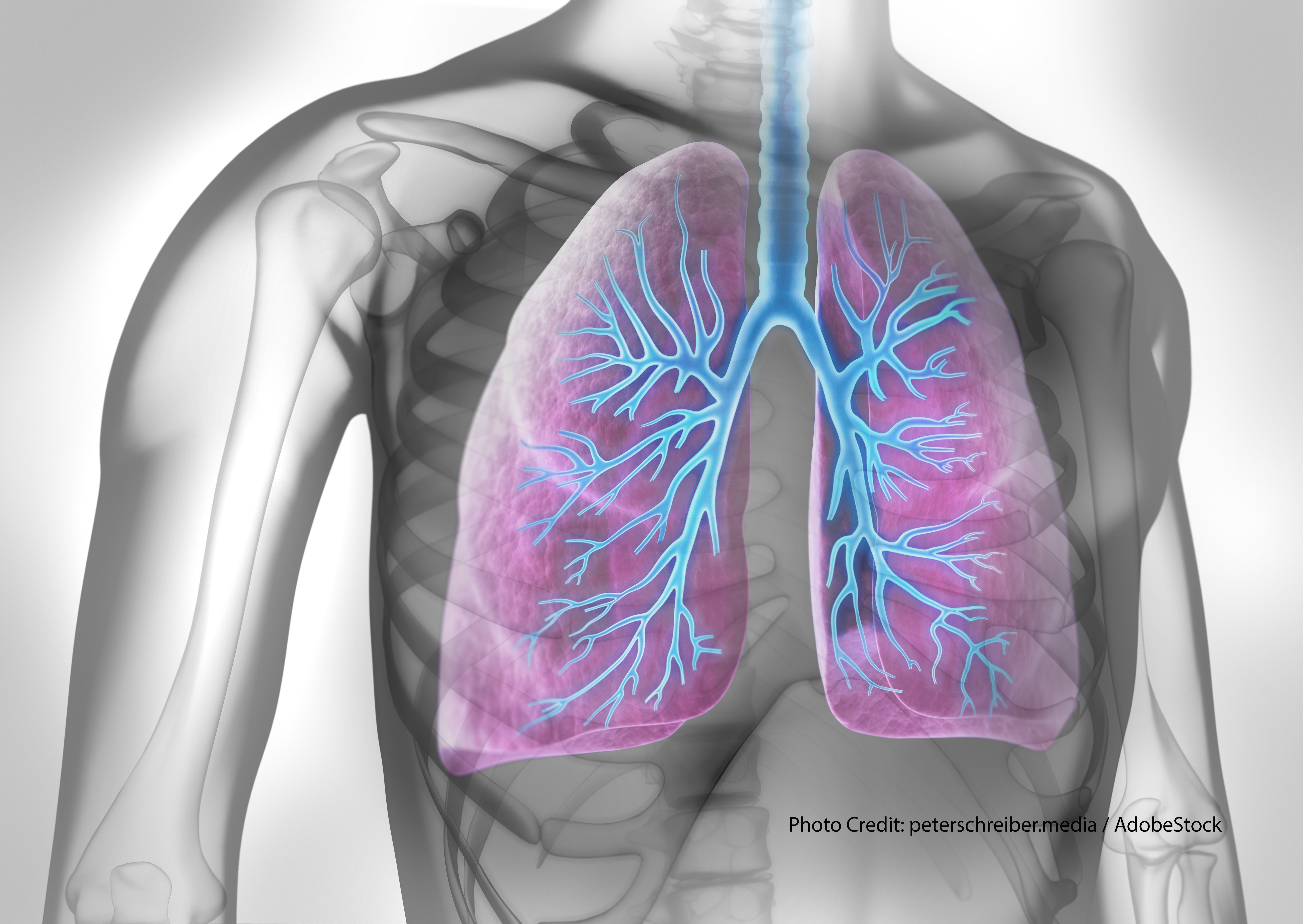 Managing COPD patients