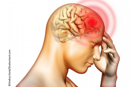 Managing patients with migraines