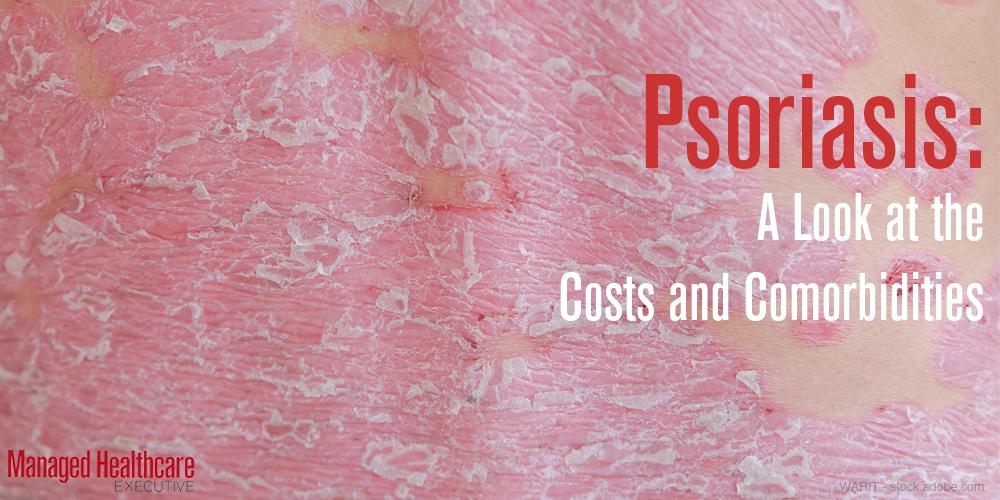 Psoriasis example