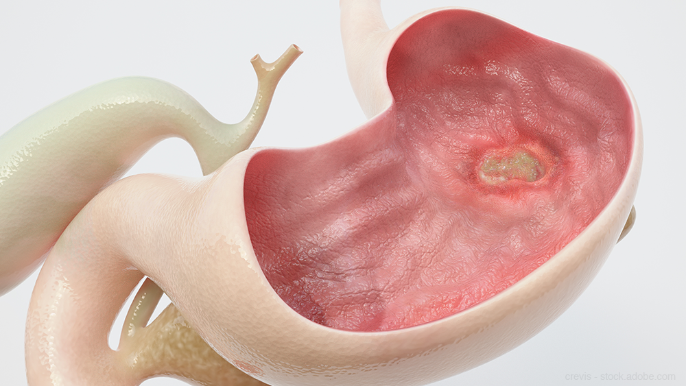 Peptic Ulcer Disease Drug Pipeline: What You Need to Know