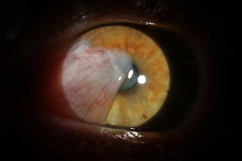 Managing the challenge of cataract surgery in eyes with diabetic macular edema