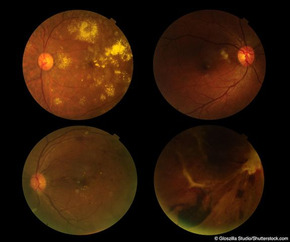 What Newly Diagnosed Amd Patients Need To Know Modern Retina