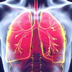 More Can Be Done for Asian American Lung Cancer Patients
