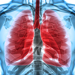 Rethinking How We Approach Stage 3 Lung Cancer Treatment
