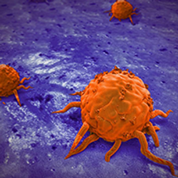 More Than 2 Cycles of Cisplatin Significantly Reduces Risk of Second Testicular Cancer