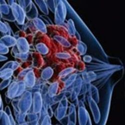 Neoadjuvant Pertuzumab Plus Trastuzumab/Nab-Paclitaxel Achieves 64% pCR With Less Toxicity in HER2+ Breast Cancer