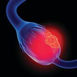 Maintenance Olaparib/Bevacizumab Provides Substantial PFS, PFS2 Benefit in HRD+ Ovarian Cancer, Irrespective of Disease Stage