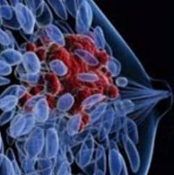 Triplet Combos Targeting ER, CDK4/6, and PIK3CA Inhibit Tumor Growth in ER+ Breast Cancer