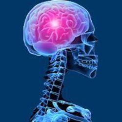 Nivolumab Plus Temozolomide/Radiotherapy Misses OS End Point in Glioblastoma Multiforme