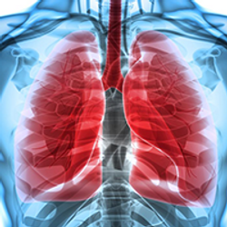 Sugemalimab Shows Prolonged PFS in Stage III NSCLC