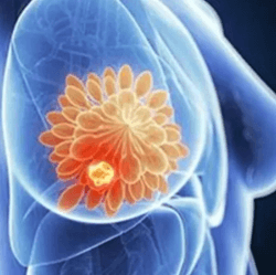 Single-Agent Trastuzumab Yields Superior Health-Related QoL in HER2+ Breast Cancer