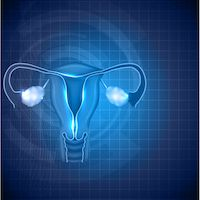 Aca Improved Ovarian Cancer Diagnosis And Time To Treatment Onclive