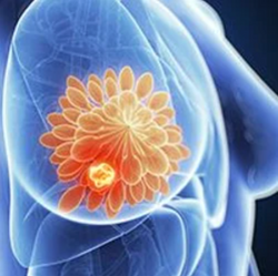 Trastuzumab Duocarmazine Shows Superiority Over Physician's Choice for HER2+ Breast Cancer