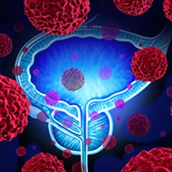 Pembrolizumab/Olaparib Combo Shows Promising Antitumor Activity in mCRPC