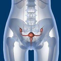 Germline Genetic Testing Gap Persists in Ovarian Cancer, More Delimited Panel Composition Needed to Improve Utility