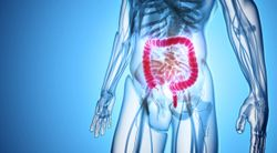 Team Up, Be Aggressive: Improving Outcomes for Metastatic Colon Cancer