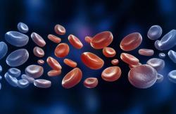 Recent Advances in Leukemia Treatment Continue to Improve Patient Outcomes