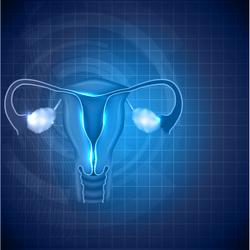 Rechallenge With Olaparib Maintenance Improves PFS in Heavily Pretreated Ovarian Cancer