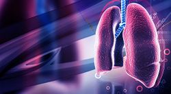 Lurbinectedin Shows Promise in Small Cell Lung Cancer Treatment