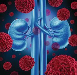 Post-Nephrectomy Patients with RCC Show Improved DFS with Adjuvant Pembrolizumab