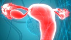 OVAL Trial Gets the OK to Continue for Patients With Ovarian Cancer
