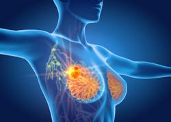 Ultralow Risk 70-Gene Promises Superior Survival Outcomes in Patients with Early-Stage Breast Cancer