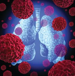 Pralsetinib Is Tolerable, Durable in RET Fusion+ NSCLC