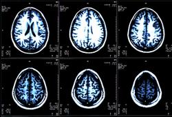 Brain Imaging Guidelines Needed for Patients with Metastatic Kidney Cancer