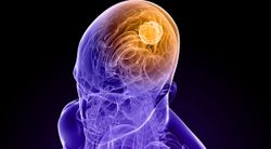 AV-GBM-1 Vaccine Improves Glioblastoma Outcomes