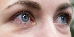 FDA approves IPL device to manage dry eye disease