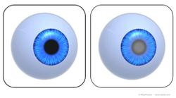 The 2 faces of glaucoma
