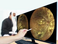 Method of predicting glaucoma conversion proves to be faster