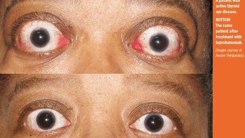 Study: Therapy reduces proptosis, diplopia in TED