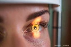 Outlook Therapeutics a step closer to FDA approval of bevacizumab-vikg for treatment of wet AMD