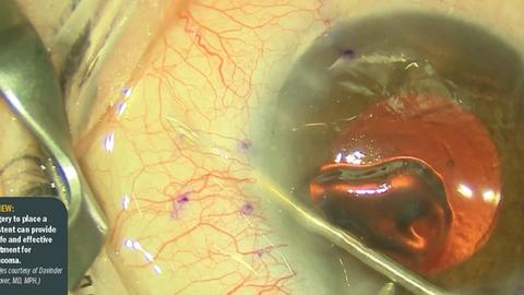 Gel stent proves value in refractory OAG