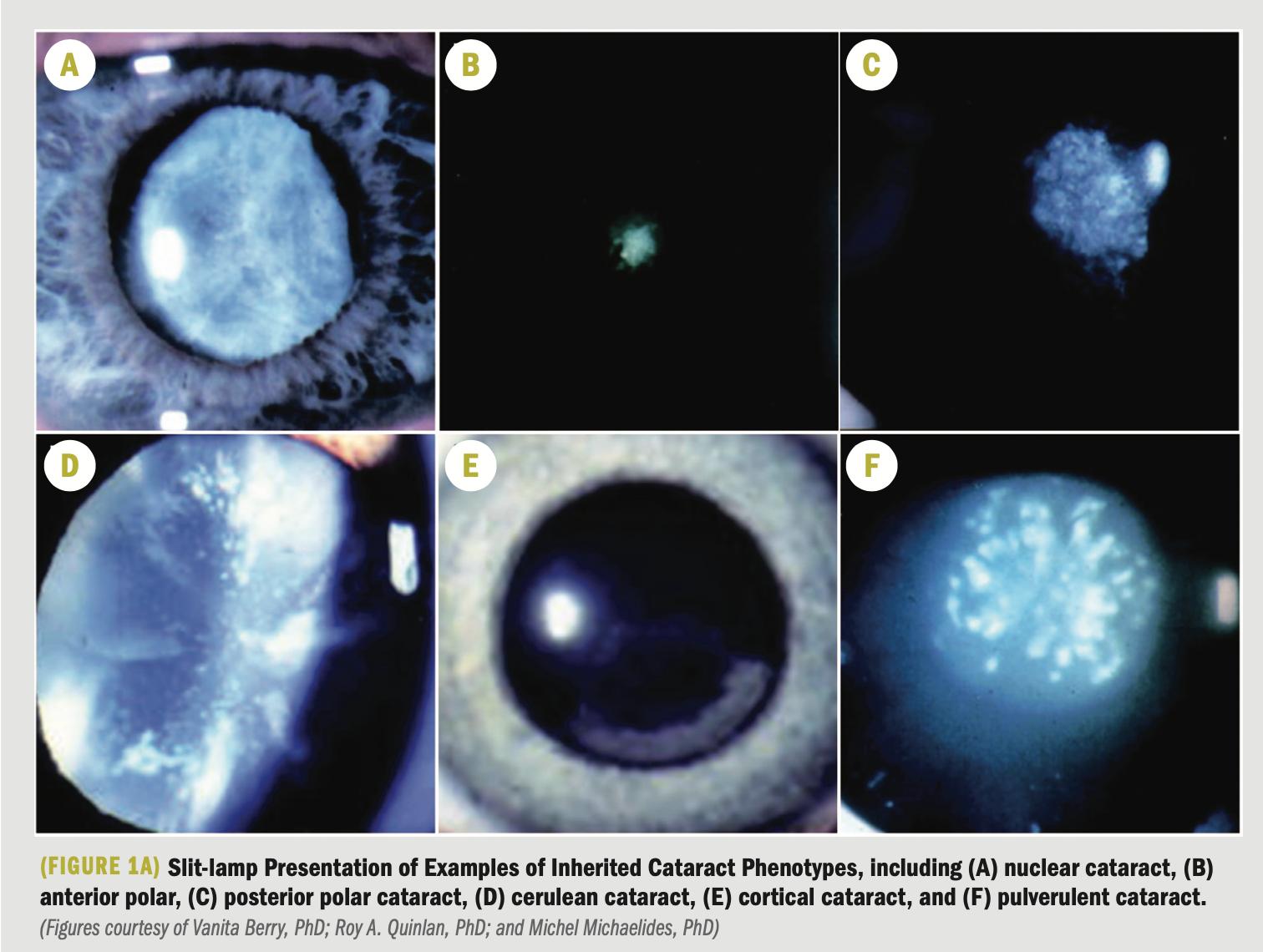 Focus on molecular mechanisms underlying cataract development