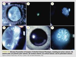 Focus on molecular mechanisms underlying cataract development