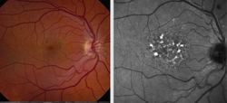 Risk awareness helps identify medication-induced retinal toxicity