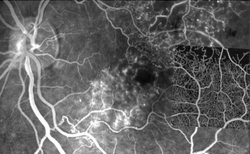 Noninvasive angiography with OCT offers definite value