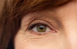 Study targets dry eye disease in postmenopausal women
