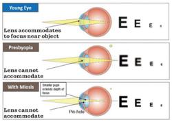 A closer look at presbyopia options