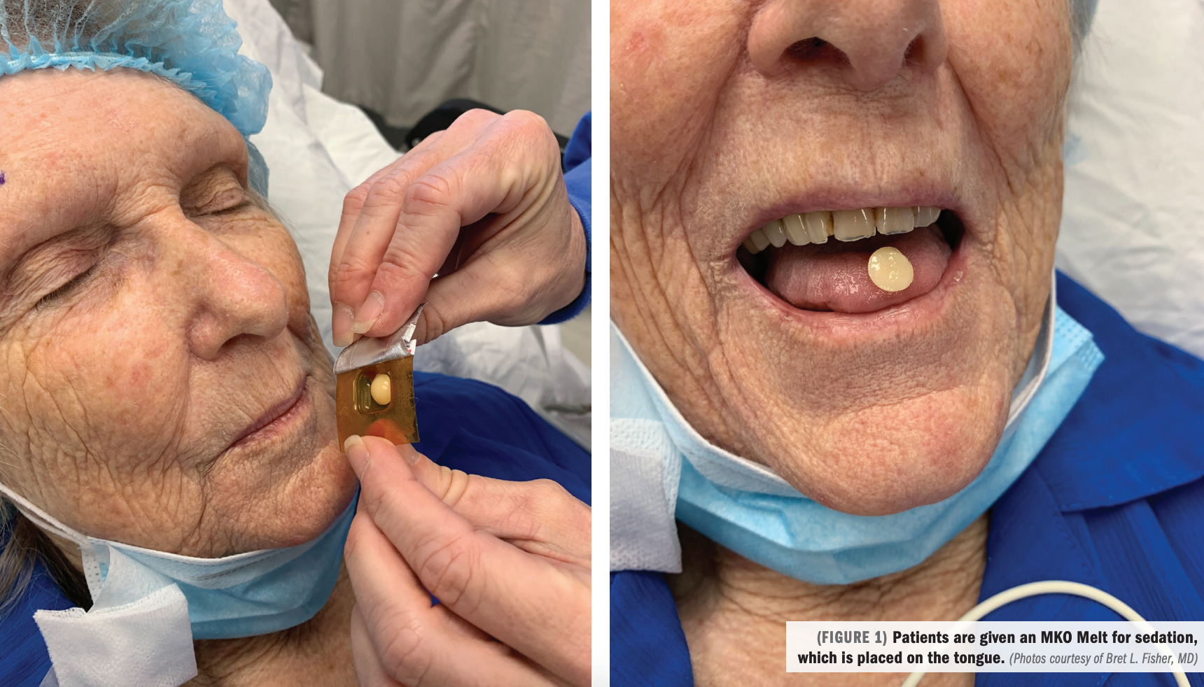 Comparable conscious sedation methods address individual patient needs