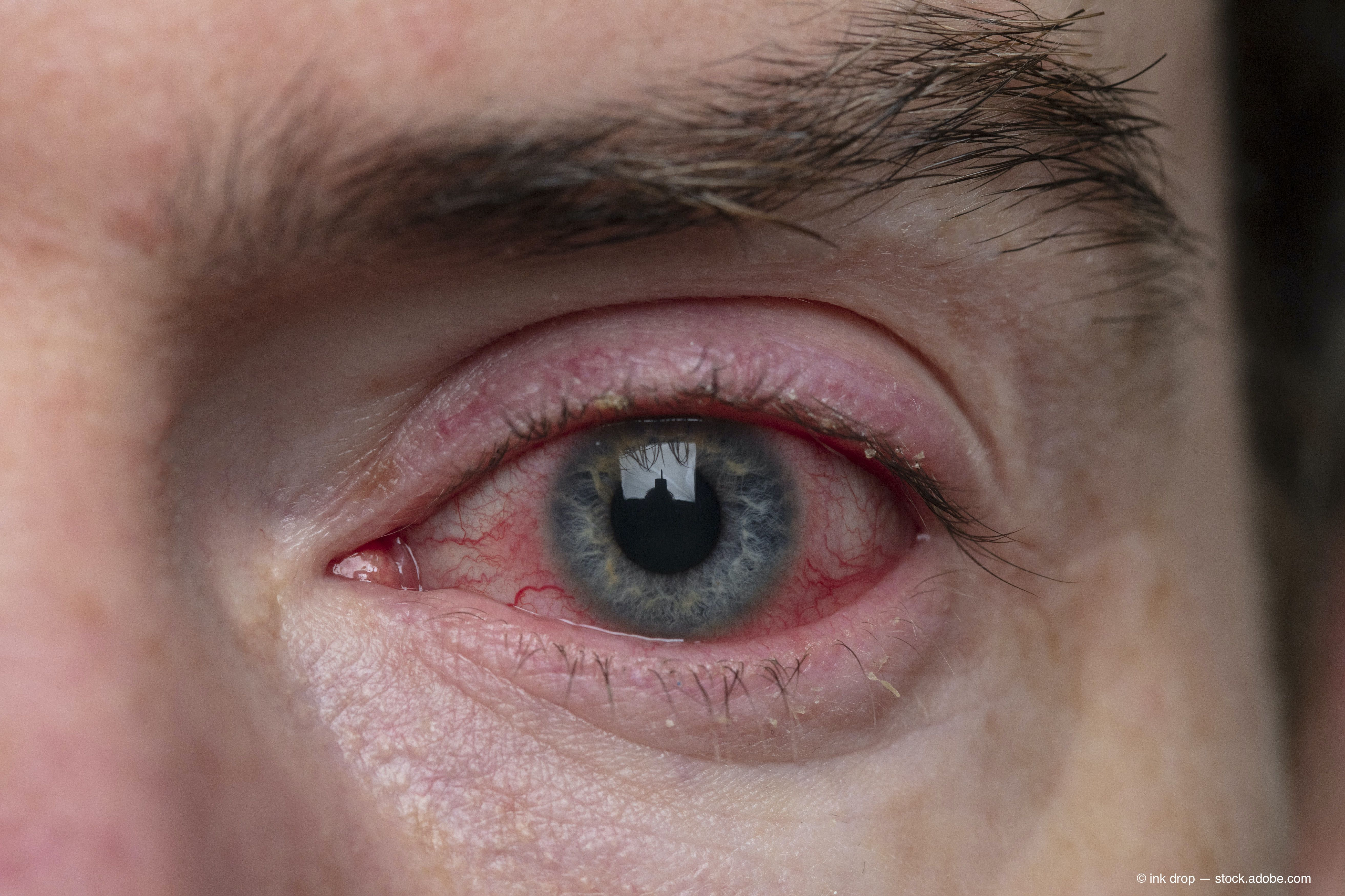 Researchers Identify Pink Eye As Possible Primary Symptom Of Covid 19