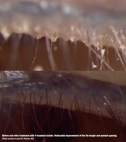 Treating Demodex blepharitis efficiently before surgery