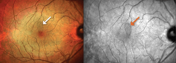 (AAO) Fingolimod for MS offers disease control with no development of uveitis