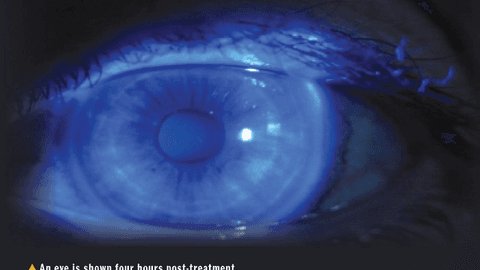 Procedures set a new horizon in refractive surgery