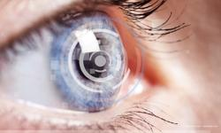 Physicians measure contrast sensitivity in patients with cataract